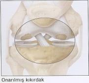 Diz Artroskopisi Sonrası - Şenol Akman