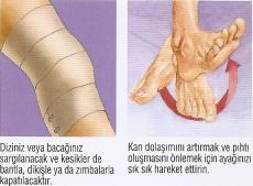 Diz Artroskopisi - Şenol Akman