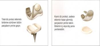 Diz Protezi - Şenol Akman