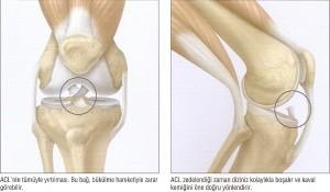Dizde Bağ Yaralanmaları - Şenol Akman