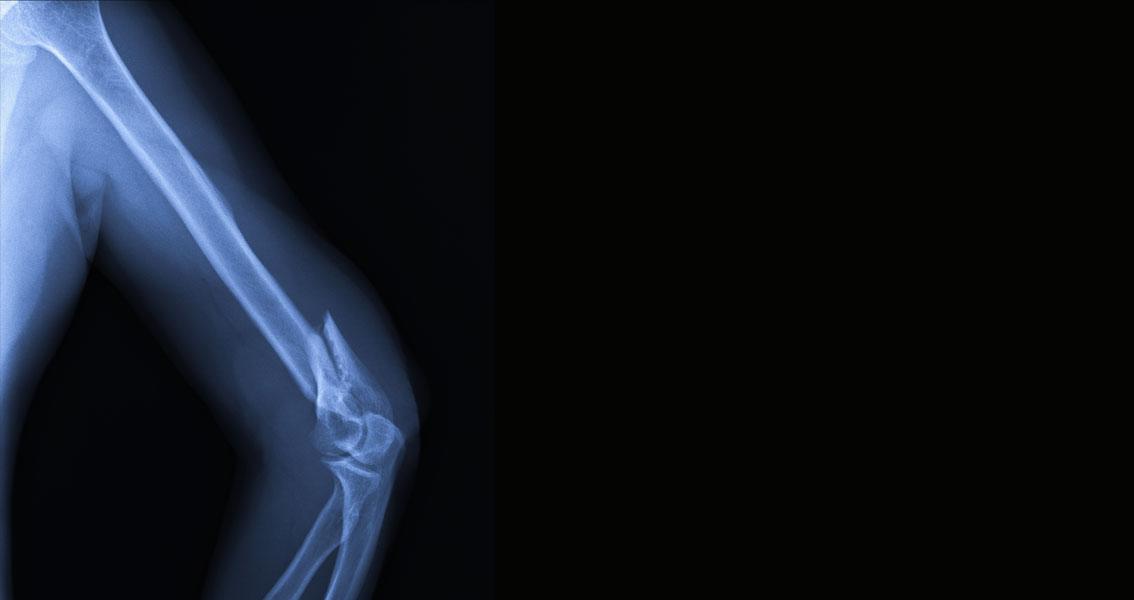 Kırıkların Konservatif ve Cerrahi Tedavileri - Prof. Dr. Şenol Akman