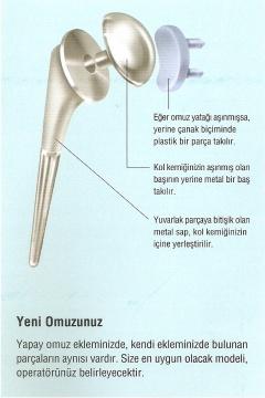 Omuz Protezi - Şenol Akman