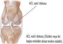 Ön Çarpraz Bağ Ameliyatı - Şenol Akman