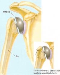 Protez Cerrahisi - Şenol Akman
