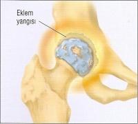 Total Kalça Protezi - Şenol Akman